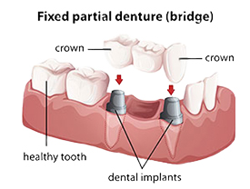 Dental bridges | Ideal Smile Dentistry | Nahideh Shojaei DDS PC | Madera, CA 93637