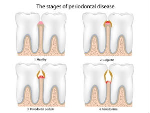 Gum Disease Treatment | Ideal Smile Dentistry | Nahideh Shojaei DDS PC | Madera, CA 93637